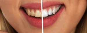 Fuquay Varina Cosmetic Dentistry Procedures