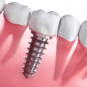 Mike Hamby DDS   Cosmetic Dentistry